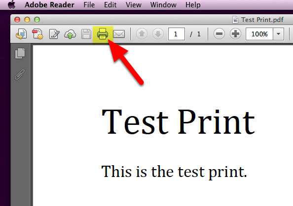 1. Print Button